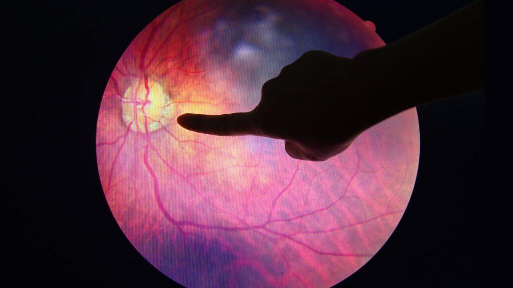 Diabetinė retinopatija