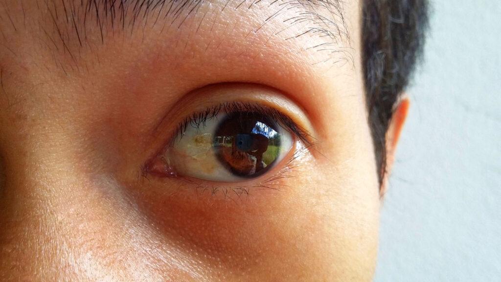 Hialininė (riebalinė) distrofija (pinguecula)