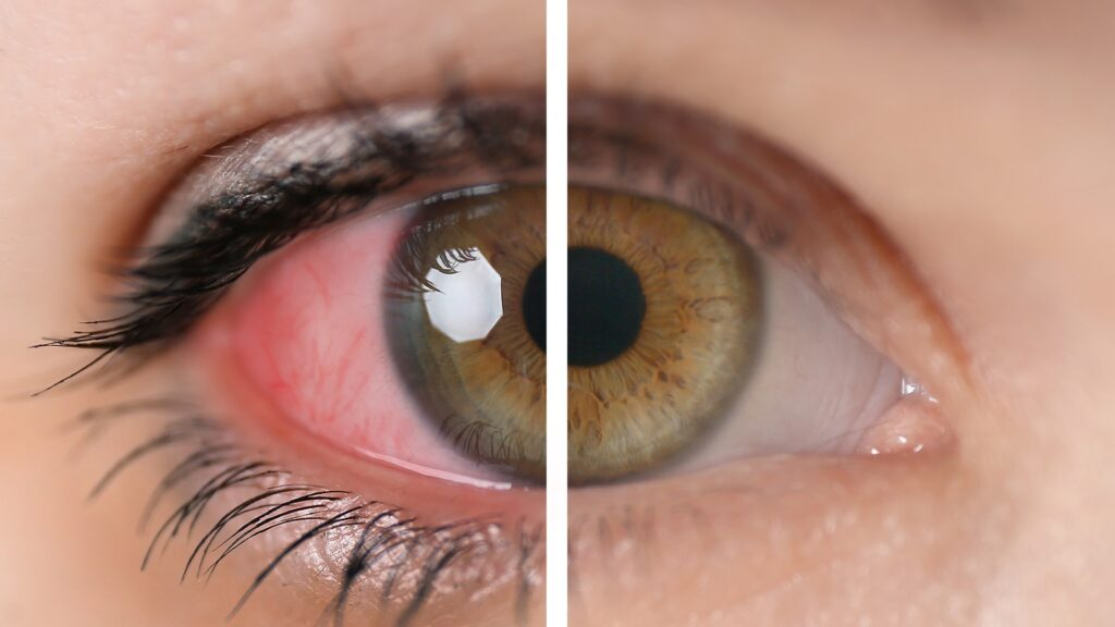 Paraudusios akys