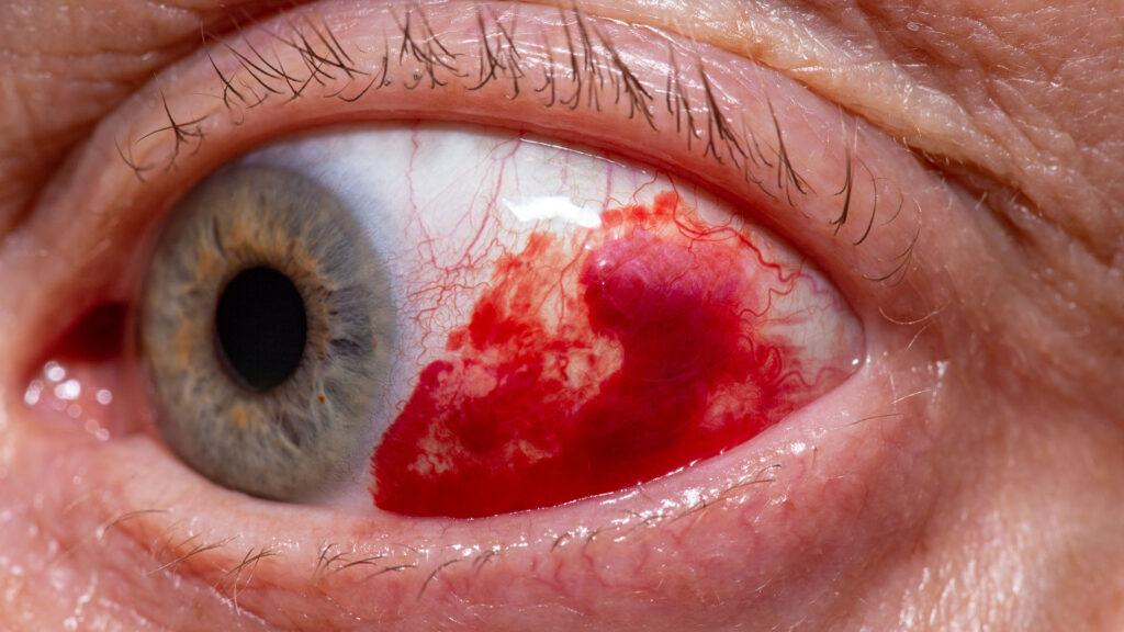 Subkonjunktyvinis kraujavimas